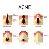 Types of acne pimples. Healthy skin, Whiteheads and Blackheads, Papules and Pustules in flat style. Royalty Free Stock Photos
