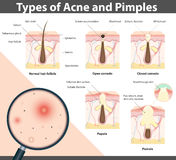 Types of Acne and Pimples, vector illustration Stock Image