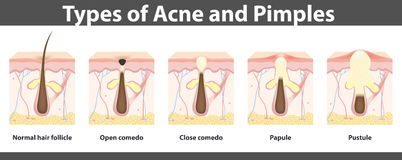 Types of acne,  structure of  pimple, vector illustration Royalty Free Stock Photos