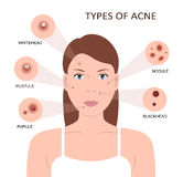 Types of acne. Woman with Pimples. Types of acne. Girl with skin problems. Woman with pimples on the face. Vector illustration flat design Stock Photo