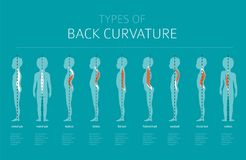 Types of back curvature. Medical desease infographic. Vector illustration Stock Image