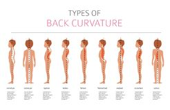 Types of back curvature. Medical desease infographic. Vector illustration Royalty Free Stock Photos