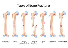 Types of bone fractures. Illustrated with the femur (hip bone), eps8 Royalty Free Stock Photography