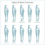 Types of bone fractures medical educational vector. Types of bone fractures medical skeleton anatomy educational vector illustration. Medical science royalty free illustration