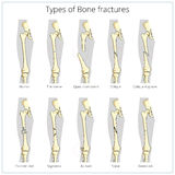 Types of bone fractures medical educational vector. Types of bone fractures medical skeleton anatomy educational vector illustration. Medical science vector illustration