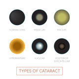 Types of cataract Stock Photos