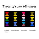 Types of color blindness. Eye color perception. Vector illustration on isolated background Royalty Free Stock Images