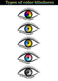 Types of color blindness. Royalty Free Stock Photos
