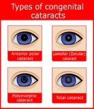 Types of congenital cataracts Stock Image