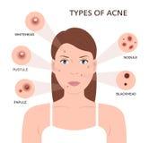 Types d'acné Femme avec des boutons Photo stock