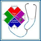 Types d'arythmie du coeur : tachycardie de sinus, arythmie de sinus Image libre de droits