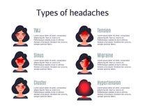 Types de mal de tête sur le secteur différent de la tête patiente illustration libre de droits