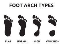 Types de voûte de pied illustration stock