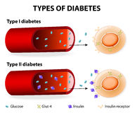 Types of Diabetes royalty free illustration