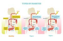 Types of diabetes vector illustration diagram scheme Stock Photos