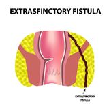 Types of fistulas of the rectum. Paraproctitis. Anus. Abscess of the rectum. Infographics. Vector illustration. On isolated background Royalty Free Stock Image