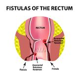 Types of fistulas of the rectum. Paraproctitis. Anus. Abscess of the rectum. Infographics. Vector illustration. On isolated background Royalty Free Stock Images