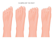 Types of the forefoot and toes Royalty Free Stock Photos