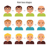 Types of hair loss. Royalty Free Stock Photography