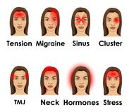 Types of headache illustrated on a woman face. Eight types of headache illustrated on a woman face isolated on white background Royalty Free Stock Image