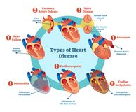 Types of heart disease collection, vector illustration diagram. Educational medical information. Stock Image