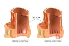 Types of Hemorrhoids. Hemorrhoids, also called piles vector illustration