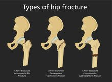 Types of hip fracture Stock Images