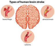 Types of human brain stroke. Illustration Stock Photography
