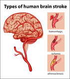 Types of human brain stroke. Illustration Royalty Free Stock Images