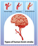 Types of human brain stroke Royalty Free Stock Photo