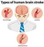 Types of human brian stroke Royalty Free Stock Images