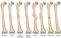 Types illustration médicale de fracture de vecteur illustration stock