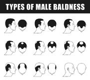 Types of male baldness Royalty Free Stock Images