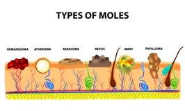 Types of moles. Nevus, pigment spot, papilloma, wart, keratoma, atheroma, hemangeoma. Mole. Anatomical structure of the stock illustration
