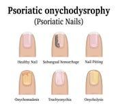 Types of nail psoriasis. Illustration of five types of nail psoriasis, such as nail pitting, subungual hemorrhage, onychomadesis, trachyonychia and onycholysis Stock Photography