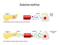 Free Types Of Diabetes Mellitus Stock Photo - 185958270