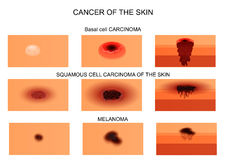 Types of skin cancer. Vector illustration of skin cancer. in the initial stage and at the stage of necrosis. the sectional view Royalty Free Stock Images