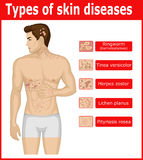Types of skin diseases. On the body of a young man Royalty Free Illustration