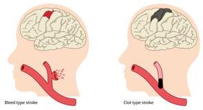 Types of stroke Stock Photo