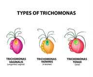 Types Trichomonads. Intestinal, oral, vaginal trichomonas structure. Trichomoniasis. Urogenital infection. Infographics. Vector vector illustration