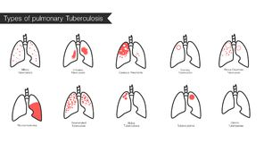 Types of tuberculosis. Vector silhouette medical illustration of human body organ lungs with trachea. Poster for clinic, hospital Royalty Free Stock Photo