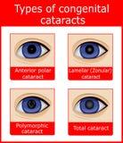Types van aangeboren cataracten Stock Afbeelding