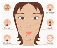 Types van acne en pukkels Royalty-vrije Stock Fotografie