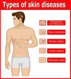 Types van huidziekten stock foto's