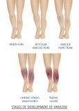 Types of varicose veins in women. Stages of development of varicose veins, vector illustration. stock illustration