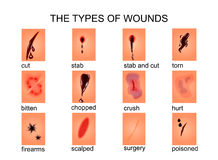 The types of wounds. Illustration of types of wounds.for medical, textbooks, publications Stock Photo