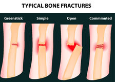 Typical bone fractures royalty free illustration