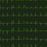 Typical human electrocardiogram green graph on dark background, seamless pattern Stock Photos