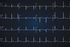 Typical human electrocardiogram, white graph on dark blue background Royalty Free Stock Images