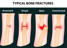 Typische Knochenbrüche lizenzfreie abbildung